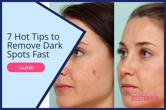 7 Hot Tips to Remove Dark Spots Fast | Even Out Skintone!
