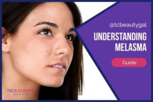 Melasma | What It Is & How to Get Rid of It