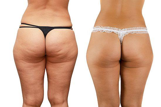 Cellulaze Before and After Buttocks